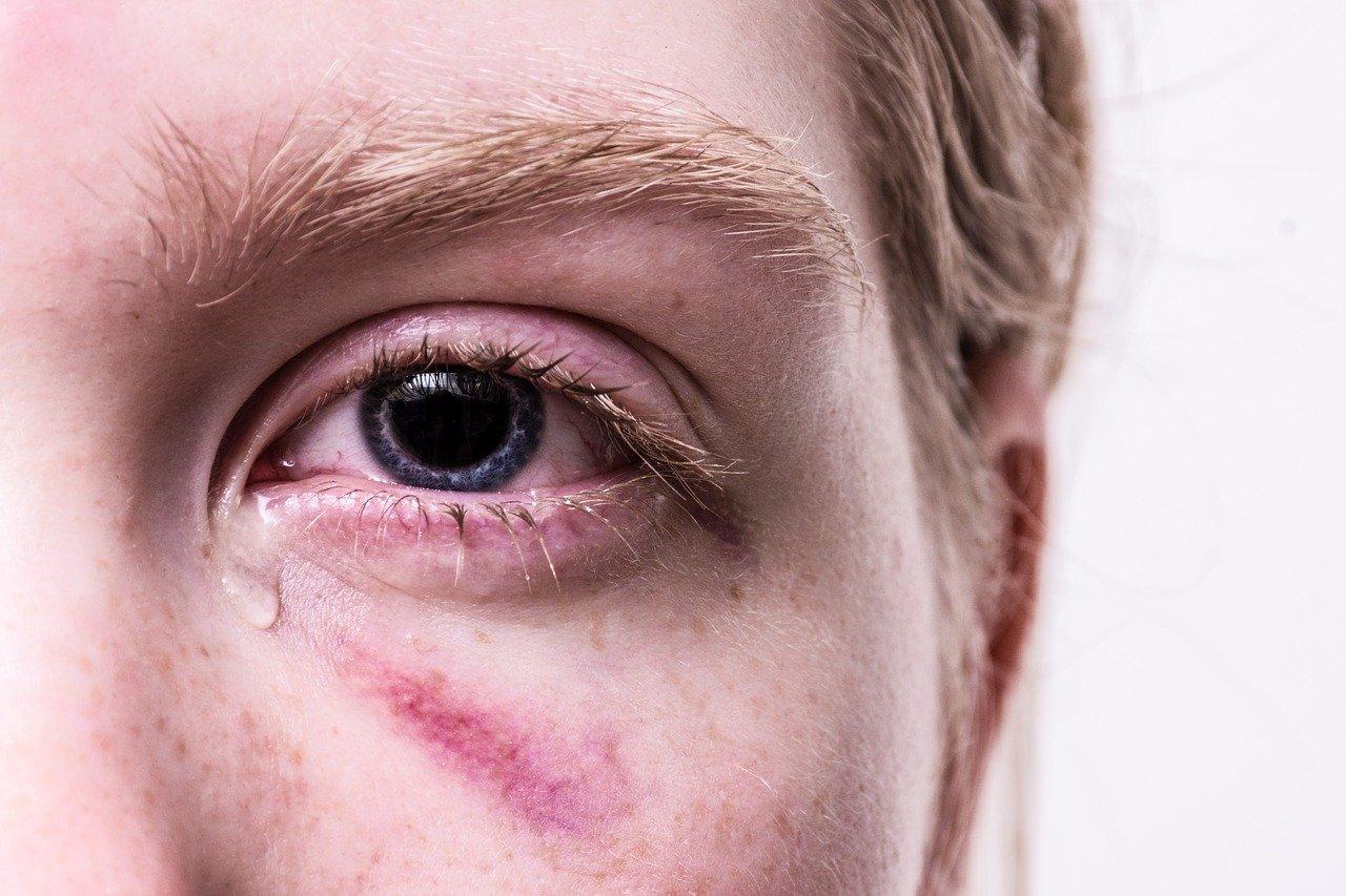 синяк, травма, глаз, слезы, насилие происшествия